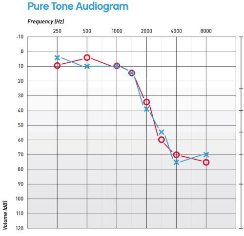 Ton-audiogram