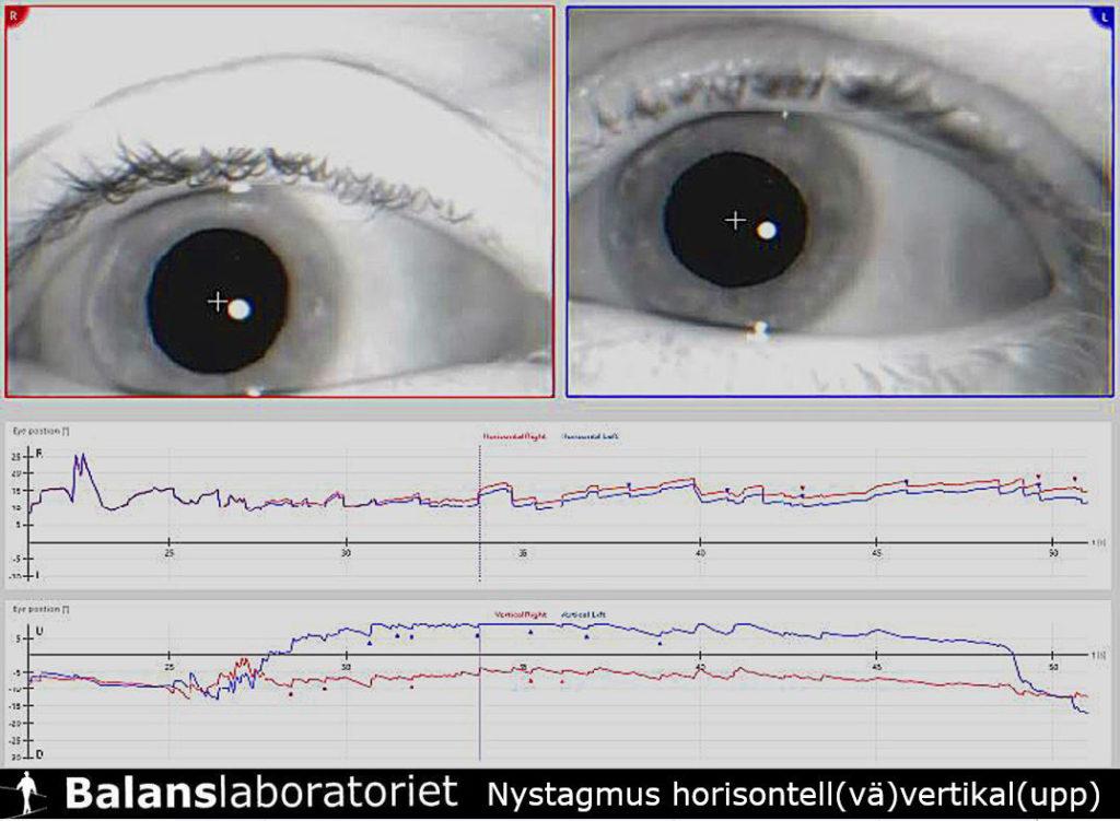 Nystagmus_px_horisontell_vaenster_vertikal_upp_BPPV-P_Hoger_Balanslaboratoriet